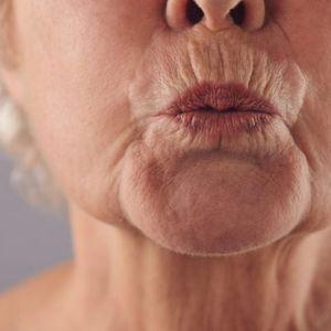 Домашна маска која ги уништува брчките околу устата како да сте ставиле ботокс