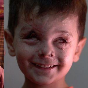 Момче од Сирија унаказено од војната