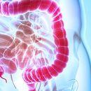 Домашни лекови против нередовно празнење на дебелото црево