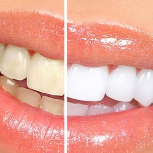 Природни и ефикасни начини за избелување на забите