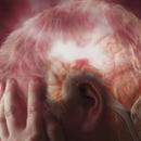 Еден од осум пациенти кои прележале ковид-19 може да добие мозочен удар или акутно крварење во главата