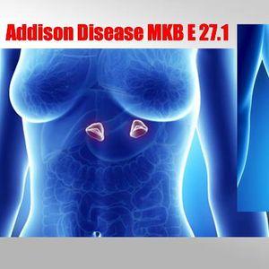 Што е Адисонова болест?