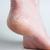 Отстранете ја здебелената кожа користејќи само две состојки