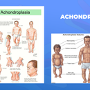 Ги запознаваме ретките болести: Ахондроплазија