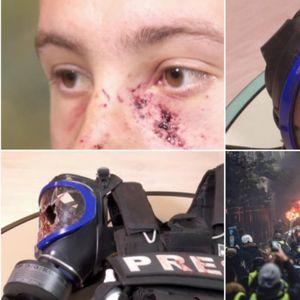 На новинар му експлодирала граната во лице: Француската полиција со воено оружје на Жолтите елеци