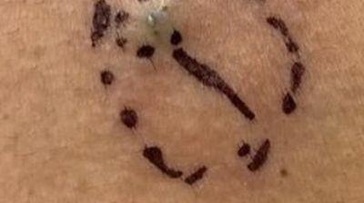 Желудникот ќе ви се преврти: Ѝ се појавило нешто црно на грбот, а потоа д-р Сандра Ли земала скалпер и...