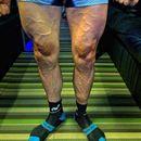 Вака изгледаат нозете по планинска етапа на Џирото