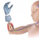 Револуционерен потфат: Тестирана најпрецизната роботска протеза