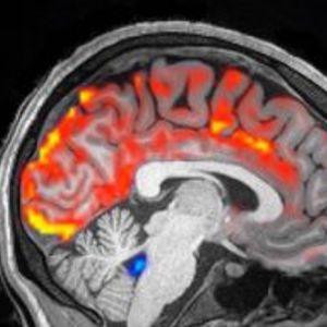 Како изгледа вистинското перење на мозокот?