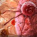 Lek za rak je USPEO! Maligne ćelije pretvorili u nešto što SVI IMAMO!