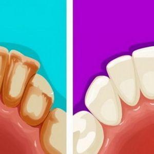 Домашни мешавини за лесно отстранување на наслагите на забите