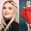 Девојка со Даунов синдром стана заштитно лице на козметички бренд