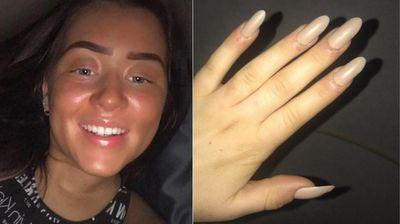 Тинејџерка со ужасна фотографија предупредува за ризикот од вештачки нокти