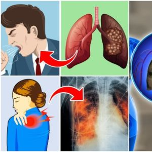 Кашлање и замор - Знаци дека треба да обрнете внимание на здравјето на белите дробови