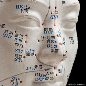 Шарлатанство или алтернатива: што е традиционалната кинеска медицина?