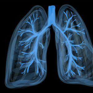 ISPRALA JE KATRAN SA PLUĆA ZA SAMO 72 SATA I DOKTORI SU BILI U ČUDU: Ovaj napitak čisti organizam!