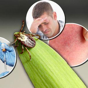 KRPELJI IZAZIVAJU LAJMSKU BOLEST KOJA JE VEOMA OPASNA I IMA 3 STADIJUMA: Na ove simptome obavezno obratite pažnju!