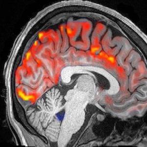 """Погледнете како мозочната течност го """"пере"""" нашиот мозок во текот на ноќта"""