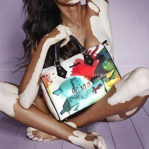 Шантел Браун Янг – супер модел, който превръща дефекта си в ефект