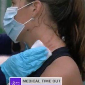 ŠOK SCENA: Ruskinja samu sebe davila i grebala usred meča! Lekari morali da joj ukazuju pomoć! VIDEO