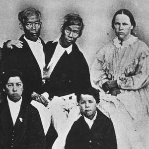 Првите сијамски близнаци имале 21 дете со две сестри