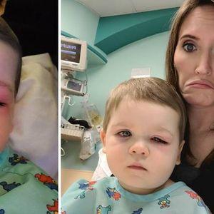 Нејзиниот син за малку ќе ослепел – Мајка предупреди на опасноста од валканите играчки кои се користат во кадата