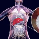 Health alert as 100,000 Brits have killer hepatitis C infection – but have no clue