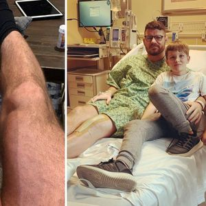 UFC legend Michael Bisping shows off hugely swollen leg after undergoing successful knee replacement