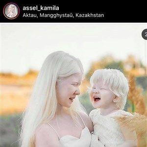 Албино сестри од Казахстан го освојуваат светот со нивната необична убавина
