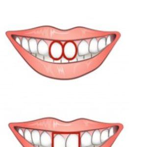 Што открива формата на предните заби за вашиот карактер?