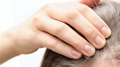 Како да се справите со губење на косата по прележан Ковид-19?