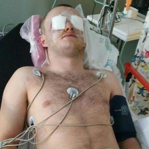 Тинејџер го изгубил видот на двете очи откако бил погоден со пејнтбол пиштол
