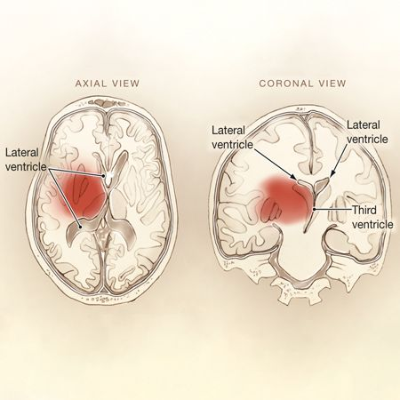 Intensive Systolic Blood Pressure Reduction in Intracerebral Hemorrhage