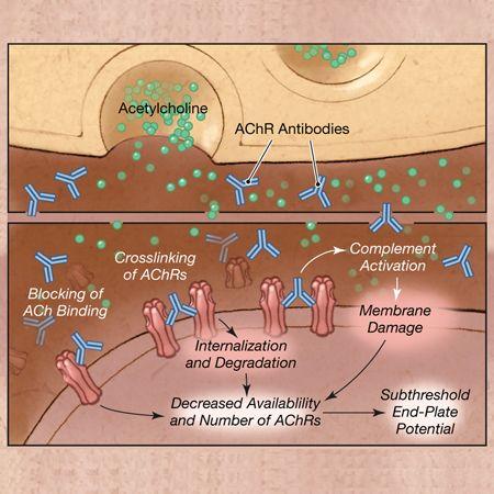 Clinical Effects of Zilucoplan in Patients With Generalized Myasthenia Gravis