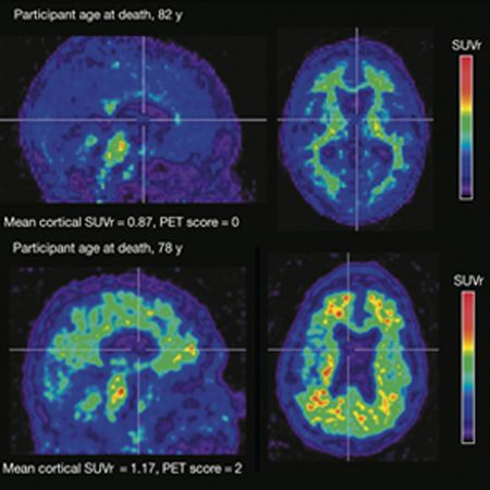 Association of Factors With Elevated Amyloid Burden in Clinically Normal Older Individuals in the A4 Study Screening Cohort