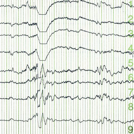 Continuous vs Routine Electroencephalogram in Critically Ill Adults With Altered Consciousness