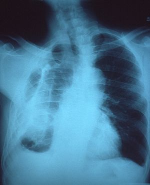 Chest x-ray showing fibrous opacity on one side