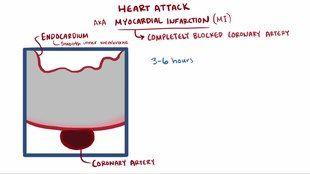 File:Heart attack video.webm