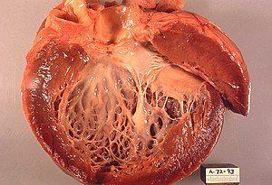 Idiopathic cardiomyopathy, gross pathology 20G0018 lores.jpg