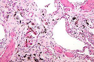 Asbestosis high mag.jpg