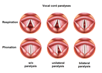 vocal cord positions regarding paralyses