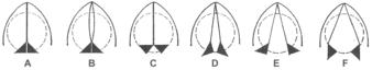 Diagram of glottis positions