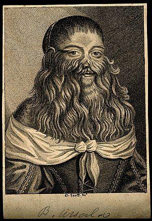 Barbara Vanbeck, a very hairy woman. Stipple engraving by G. Wellcome V0007287.jpg
