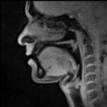 File:Real-time MRI - Speaking (English).ogv