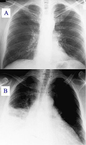 Pneumonia x-ray.jpg