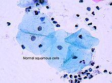 Squamous cells.jpg