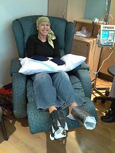 Chemotherapy with acral cooling.jpg
