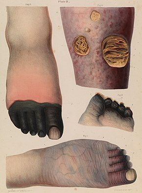 Four drawn illustrations on a page, including (top left) a foot with black toes, (top right) a limb with holes in the skin showing yellowed matter beneath, (centre right) the end of a foot with blackened stubs where the toes once were, and (bottom) a foot that is wrinkled and dark, with prominent veins and purple toes.