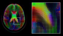 Brain imaging informatics