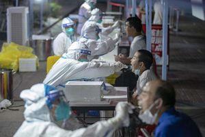 Oms, indagine sulla fuga del virus dal laboratorio, condividere i dati - Mondo